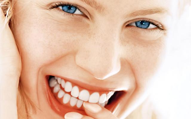 sorriso-perfetto