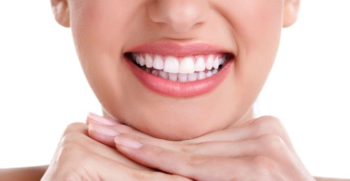 come sbiancare i denti Hollywood whitening