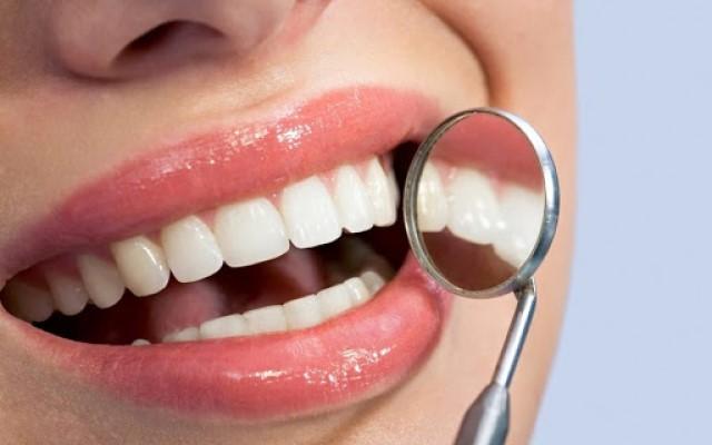 Come rimuovere il tartaro dai denti: ecco alcuni rimedi casalinghi